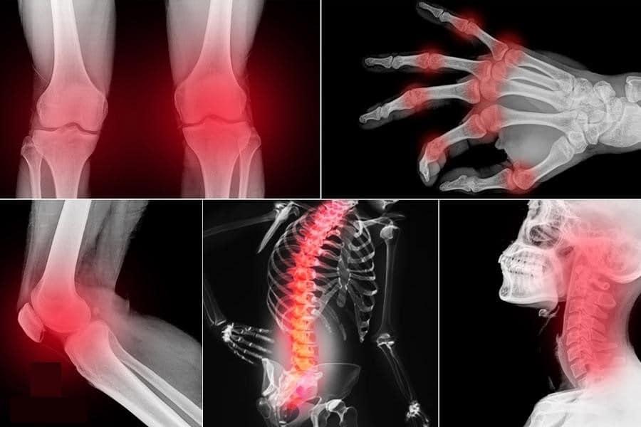 Tê nhức chân tay là một trong những bệnh lý do béo phì gây ra