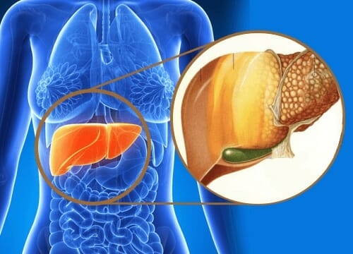 Beo phì gây ra mỡ máu cao và gan nhiễm mỡ