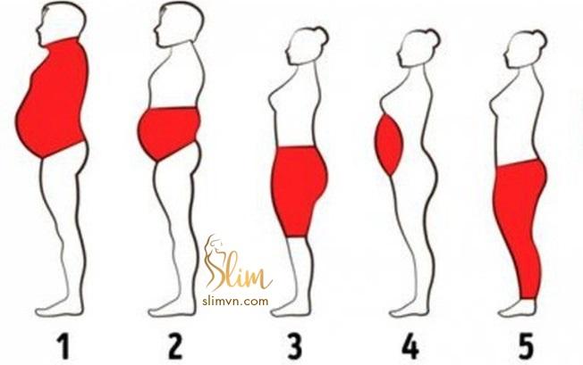 Các điểm tích tụ mỡ trên cơ thể con người - thừa cân béo phì