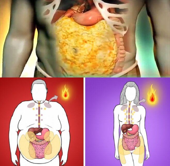 Mỡ trắng - Mỡ nội tạng - Ly giải mỡ trắng