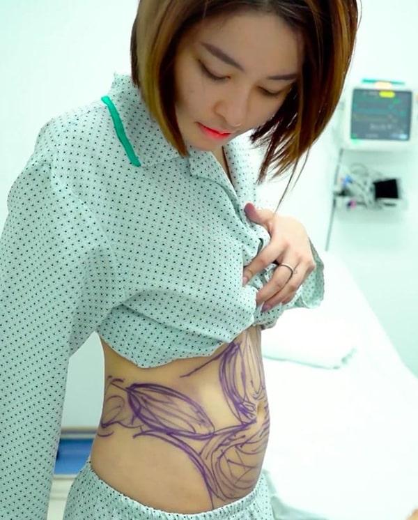 Cách giảm cân của Trâm Anh - chịu chút đau đớn hút mỡ bụng nhưng không hiệu quả